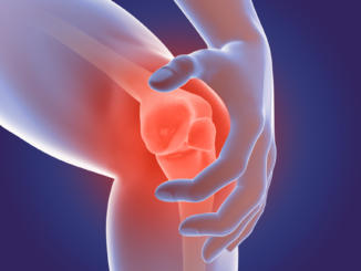A photo of an arthritis joint